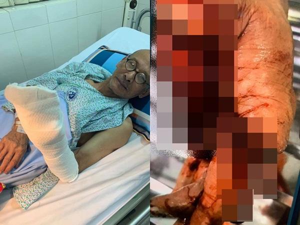 Nhà văn Nguyễn Văn Thọ bị tai nạn đứt lìa nửa bàn tay trái, phải phẫu thuật suốt 7 giờ