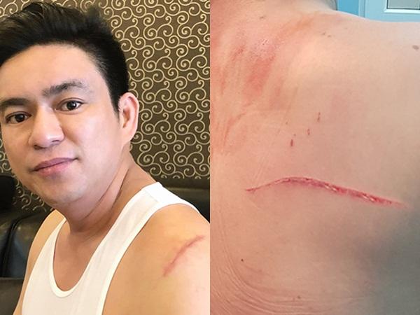 Vợ cũ bác sĩ Chiêm Quốc Thái bị tình nghi thuê giang hồ chém chồng