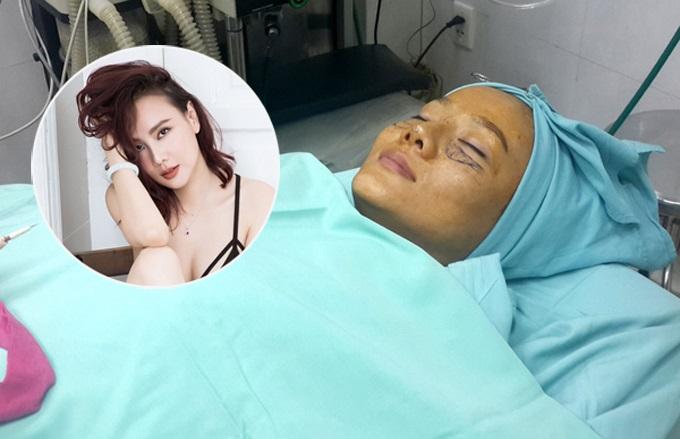 Những sao Việt từng công khai quá trình phẫu thuật thẩm mỹ