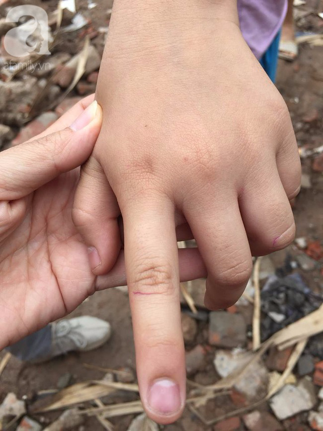 Hà Nội: Cô giáo đánh bầm tím tay học sinh lớp 5 vì không làm bài tập về nhà - Ảnh 2