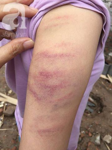 Hà Nội: Cô giáo đánh bầm tím tay học sinh lớp 5 vì không làm bài tập về nhà - Ảnh 3