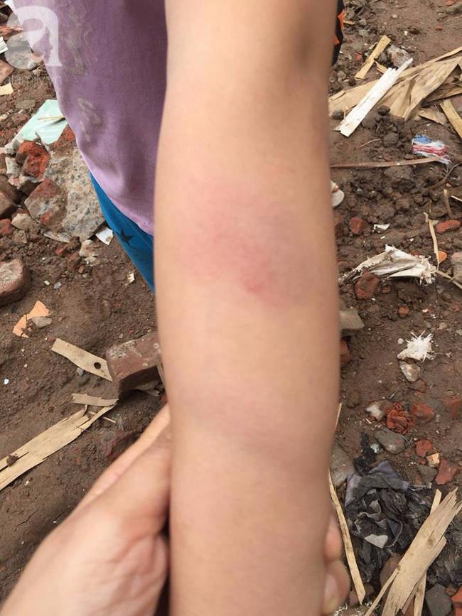 Hà Nội: Cô giáo đánh bầm tím tay học sinh lớp 5 vì không làm bài tập về nhà - Ảnh 1