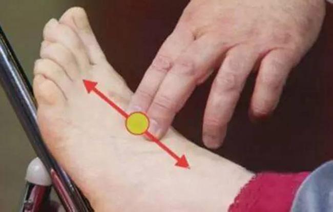 Đây là 3 cách kiểm tra cực nhanh giúp bạn biết được mình có nguy cơ bị tắc nghẽn mạch máu hay không? - Ảnh 1