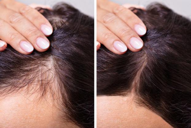 4 cách tự nhiên kích thích mọc tóc ngay tại nhà