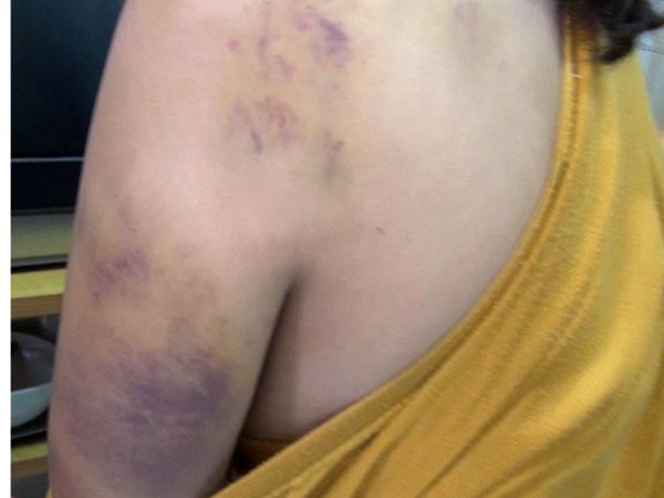 Vụ giải cứu 8 thiếu nữ trong 'động quỷ': Nạn nhân bị đánh đập, chích điện, tra tấn dã man 'như thời trung cổ'