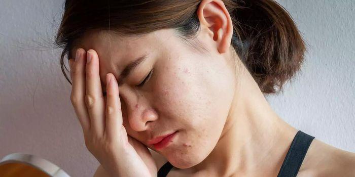 Những nguyên nhân khiến da dễ nổi mụn, điều thứ 4 hầu hết chị em nào cũng mắc phải - Ảnh 2
