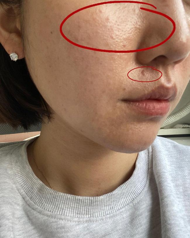 Cải thiện lỗ chân lông to ngoác: 5 điều nhất định phải làm để da dẻ láng mịn không gợn vết tích - Ảnh 2