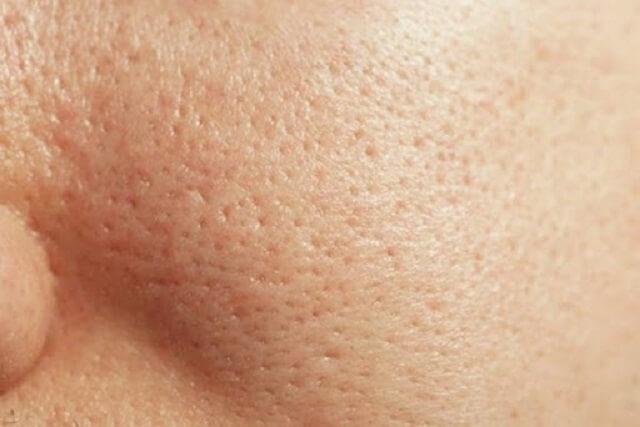 Cải thiện lỗ chân lông to ngoác: 5 điều nhất định phải làm để da dẻ láng mịn không gợn vết tích - Ảnh 1