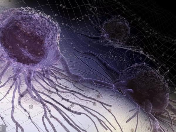 3 loại ung thư dễ phát triển thành 'ung thư vợ chồng', nếu vợ hoặc chồng mắc bệnh người còn lại nên đi khám gấp