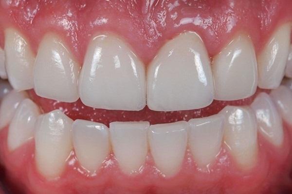 Súc miệng với oxy già theo cách này, mảng bám tự động bong ra hết sạch, cao răng cả năm không cần đi lấy nếu làm đều đặn 1 lần/tuần - Ảnh 1