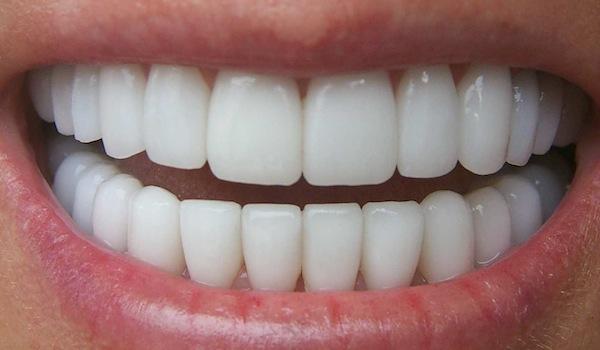 Súc miệng với oxy già theo cách này, mảng bám tự động bong ra hết sạch, cao răng cả năm không cần đi lấy nếu làm đều đặn 1 lần/tuần - Ảnh 5