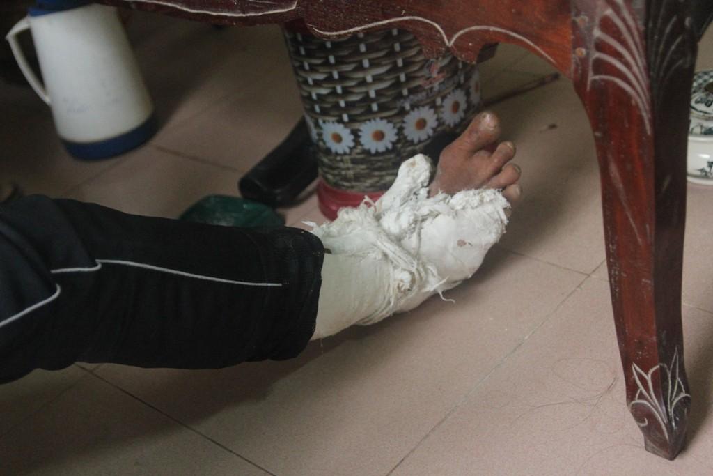 Vụ con trai đánh cha gãy xương sườn, vỡ bánh chè: Giám định thương tích xác định tổn hại 6% sức khỏe - Ảnh 2