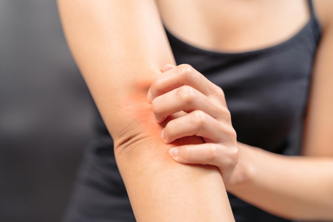 15 dấu hiệu bệnh gan biểu hiện ra ngoài cơ thể, không thể lơ là - Ảnh 1