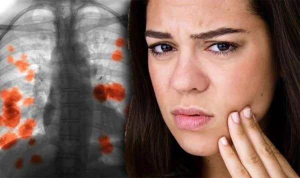3 dấu hiệu trên cơ thể nhận biết ung thư phổi, nhớ nhìn kỹ ngón tay - Ảnh 1