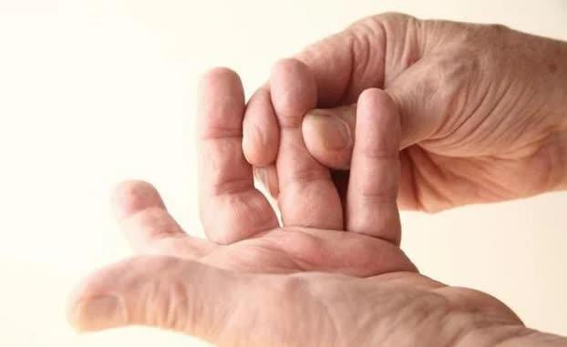 3 dấu hiệu trên cơ thể nhận biết ung thư phổi, nhớ nhìn kỹ ngón tay - Ảnh 3