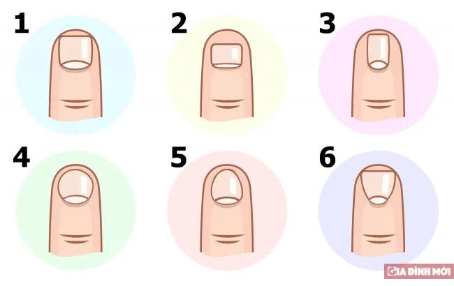 Nhân tướng học: Hình dạng móng tay nói lên điều gì về tính cách bạn? - Ảnh 1
