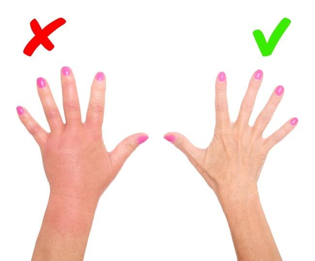 Bệnh nhân bị bệnh cường giáp thường gặp triệu chứng là tay bị phù.