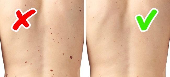 Xuất hiện nhiều nốt ruồi trên da cũng có iểu hiện trên da cảnh báo bệnh ung thư da.