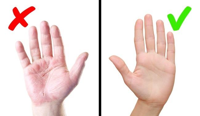 Da bong tróc có thể do bệnh vẩy nến hoặc bệnh nghiêm trọng khác.