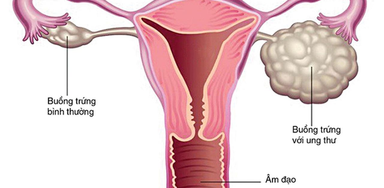 11 loại ung thư hay gặp sau tuổi 40, phổ biến nhất là ung thư đường tiêu hóa - Ảnh 2
