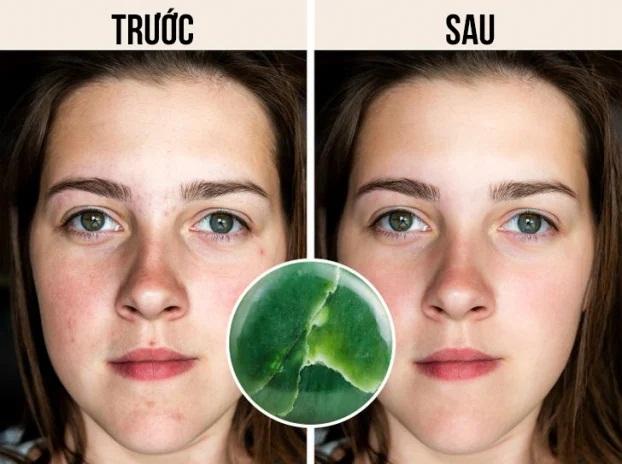 6 tác dụng thần kỳ của cây lăn mặt với làn da, chị em đừng bỏ qua - Ảnh 3
