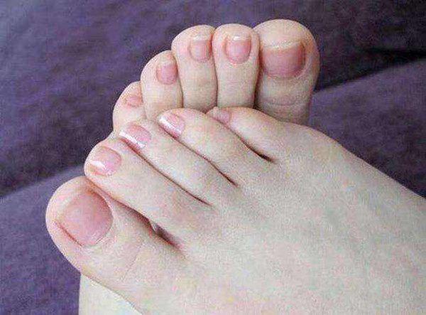 Bỗng dưng thấy bàn chân thay đổi theo 3 cách này, coi chừng bệnh ung thư đang phát triển trong cơ thể, cần lập tức đi khám - Ảnh 1