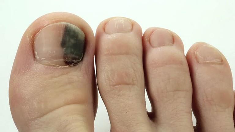Bỗng dưng thấy bàn chân thay đổi theo 3 cách này, coi chừng bệnh ung thư đang phát triển trong cơ thể, cần lập tức đi khám - Ảnh 3