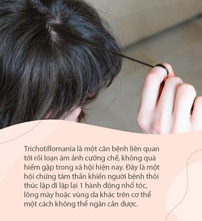 Con gái liên tục tự nhổ tóc mỗi ngày, 15 tuổi đã hói cả đầu, mẹ đưa đi khám mới tá hóa phát hiện sự thật - Ảnh 1