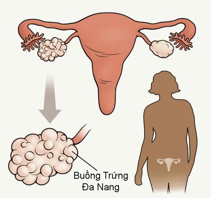 Những nguyên nhân khiến bạn gái bịmất kinh đột ngộtmà không phải mang bầu - Ảnh 3