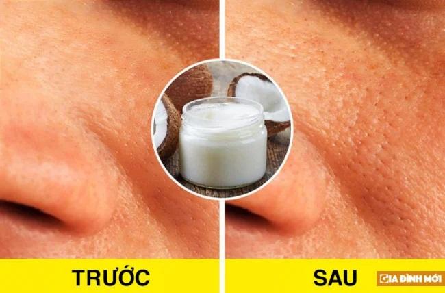 Bác sĩ da liễu chia sẻ 6 quan niệm sai lầm khi chăm sóc da mà nhiều người vẫn tin sái cổ - Ảnh 3