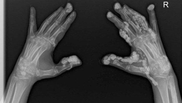 Căn bệnh này gây ra tình trạng hình thành canxi bên dưới da và chưa có phương pháp điều trị.
