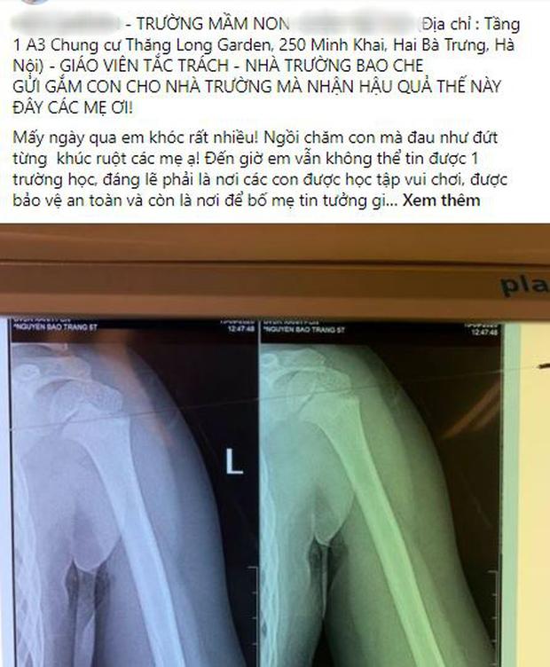 Nhà trường lên tiếng sau vụ bé gái 5 tuổi ngã gãy tay, nguy cơ bị liệt khi đang trong giờ học - Ảnh 1