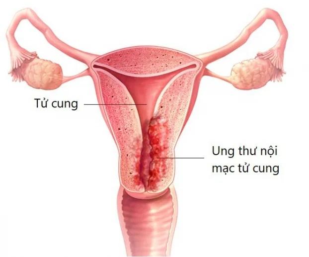 4 bệnh ung thư phổ biến ở nữ giới, có 2 loại chỉ phát hiện khi đã ở giai đoạn cuối - Ảnh 4