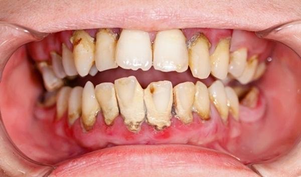 Nghiền nát 1 nắm húng quế rồi đánh răng theo cách này, răng vàng khè cũng trắng như ngọc trai, cao răng cả năm không cần đi lấy chỉ tốn 2 phút - Ảnh 1