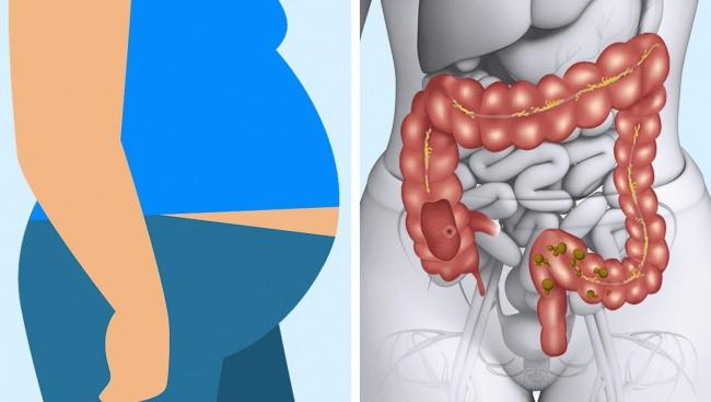Những dấu hiệu cảnh báo bạn đang ăn quá nhiều thịt trong bữa ăn của mình - Ảnh 1