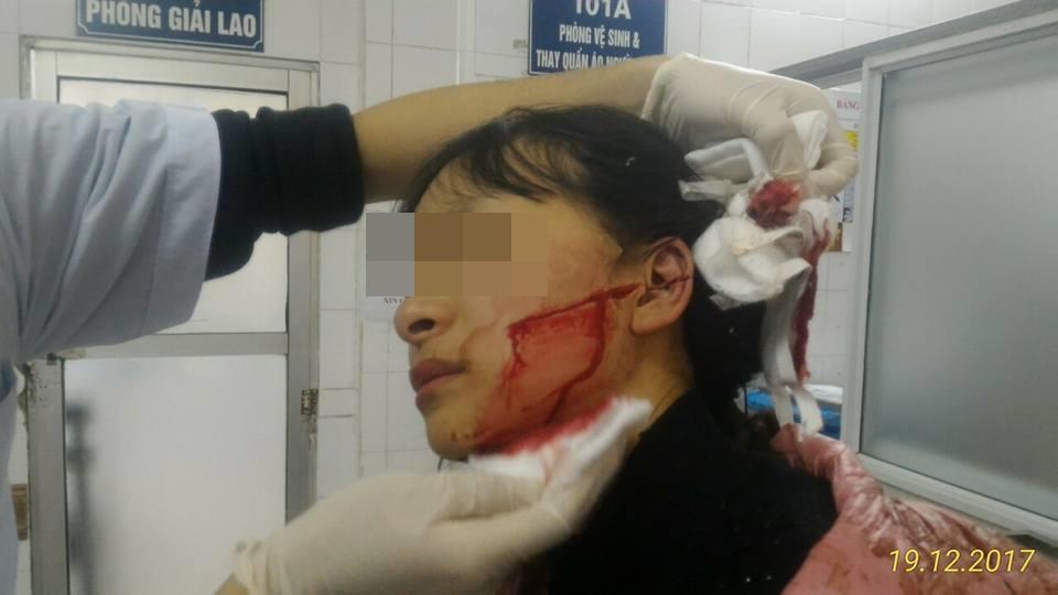 Thanh Hóa: Mâu thuẫn buôn bán, nữ sinh lớp 11 bị rạch mặt dã man  - Ảnh 1