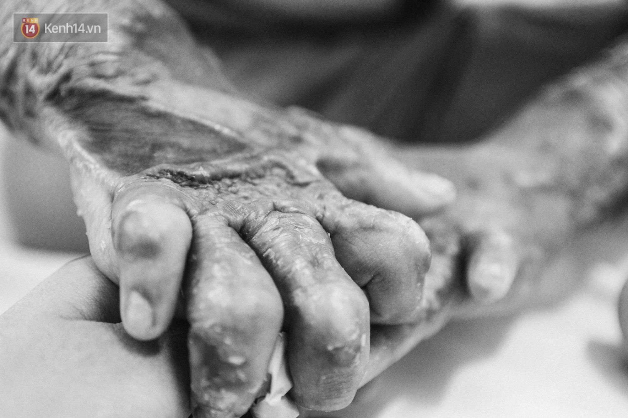 Xót xa những vết bỏng đau đớn trên người bé trai 6 tuổi: Ngày con phải cưa chân là ngày bạn bè vào lớp 1 - Ảnh 3