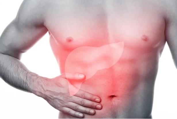 3 bất thường xuất hiện trên cơ thể báo hiệu bệnh gan đã chuyển thành ung thư - Ảnh 2