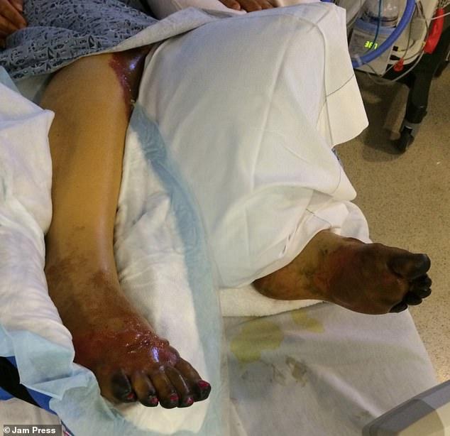 Cứ nghĩ mình bị cúm nên không đi khám ngay, người phụ nữ sửng sốt khi hay tin mắc căn bệnh nặng đến nỗi phải cắt cụt 10 đầu ngón chân - Ảnh 2