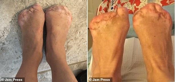 Cứ nghĩ mình bị cúm nên không đi khám ngay, người phụ nữ sửng sốt khi hay tin mắc căn bệnh nặng đến nỗi phải cắt cụt 10 đầu ngón chân - Ảnh 3