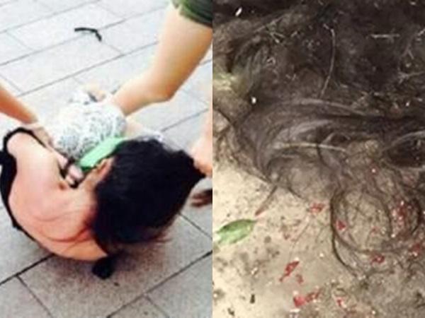 Kinh hoàng: Nữ sinh 17 tuổi bị tình cũ của người yêu cạo đầu, đổ nước nóng vào vùng kín