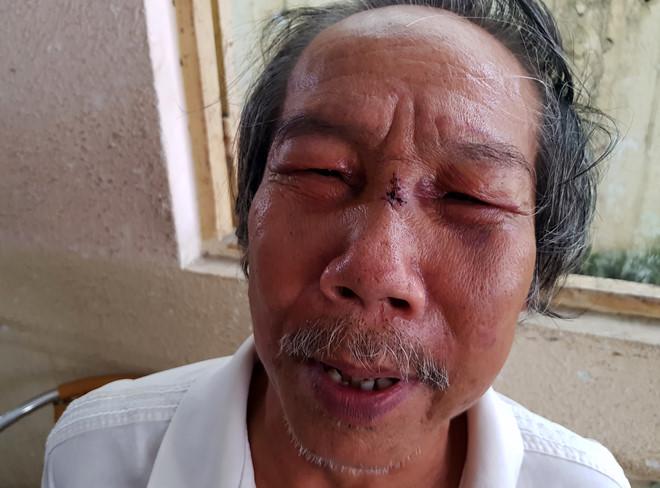 Bảo vệ đánh nhà thơ 68 tuổi ngất xỉu từng đi tù vì buôn bán ma túy - Ảnh 1