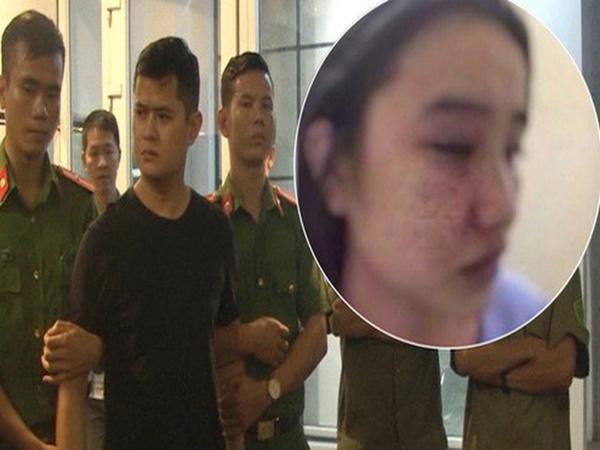 Nóng: Bắt bác sỹ da liễu bị tố hiếp dâm và đánh đập dã man nữ điều dưỡng ở Huế
