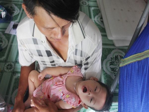 Bé gái 1 tuổi co giật liên tục đến mức méo miệng, bố mẹ nghèo bật khóc khi đã có tiền chữa bệnh cho con