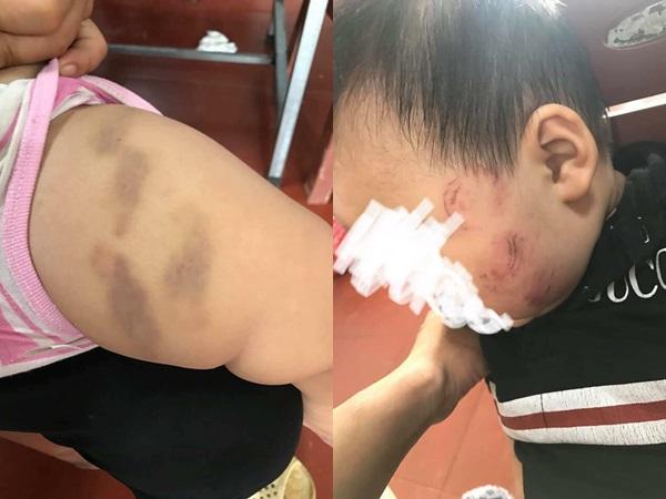 Bé trai 10 tháng tuổi bị bầm tím ở trường mầm non do 'đóng lệch bỉm': Tiết lộ thông tin bất ngờ