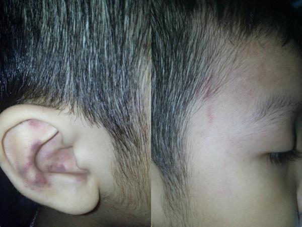 Bé trai 5 tuổi bầm tai khi đi học mẫu giáo: 'Cô xách lỗ tai kéo vào nhà tắm rồi dùng ca múc nước đánh'