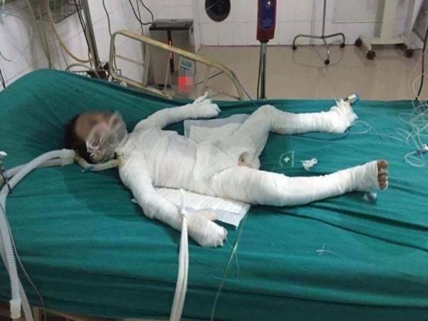 Đau lòng: Bé trai 6 tuổi bị cha dượng tẩm xăng đốt đã trút hơi thở cuối cùng lúc rạng sáng