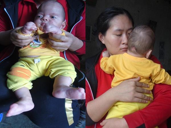 Bé trai nằm xuống là tắt thở, ba mẹ phải thay nhau bế cả đêm: Nhìn con khóc mà tim đau thắt