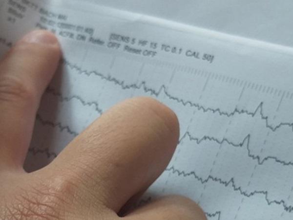 """Bệnh viện Bạch Mai: Nghi vấn """"cắt xén"""" thời gian điện não video cho bệnh nhân tâm thần từ 12 tiếng xuống còn 40 phút"""