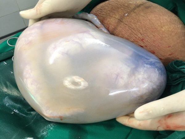 Chuyện hy hữu: Cặp song sinh nằm gọn trong bọc ối hình trái tim nguyên vẹn ở Hà Nội